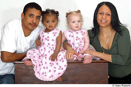 Englantilainen äiti synnytti kaksostytöt, joista toinen on musta ja toinen valkoinen
