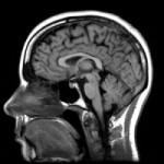 Uusi tutkimus: yksipuolinen kasvisruokavalio saattaa kutistaa aivoja