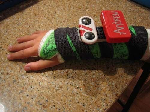 Pojan käsi murtui, tilalle laitettiin biomekaaninen Lego-komponentti 1