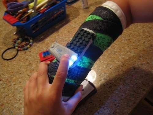 Pojan käsi murtui, tilalle laitettiin biomekaaninen Lego-komponentti 2