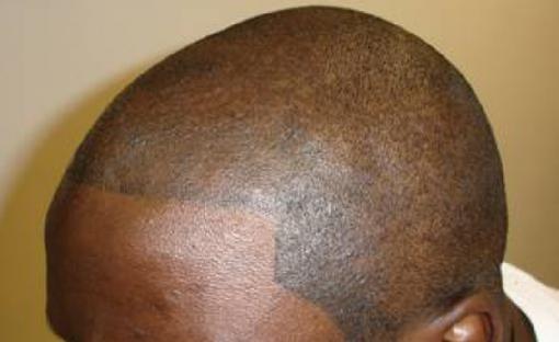 HiStyl tatuoi sängen kaljuun päähän