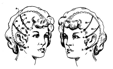 Mekaaninen kasvojenkohotin (US 4995379)