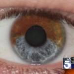 Uusi laserleikkaus tekee ruskeista silmistä sinisiä. Pysyvästi.