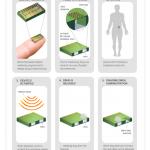 Startup kehitti lääkkeitä annostelevan implantin, jota voi ohjata ulkoa käsin