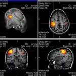 Aivotoimintatutkimus mahdollistaa rikollisten taipumusten selvittämisen – Jopa ennen rikosta