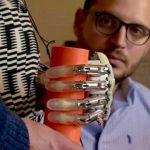 Uudenlainen neuroproteesi-käsi mahdollistaa tunnon sormenpäissä