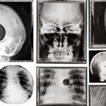 Soviet X-Ray Music – Neuvostoliiton röntgenfilmi-lp-levyt toivat kansalle vapaudentunnetta