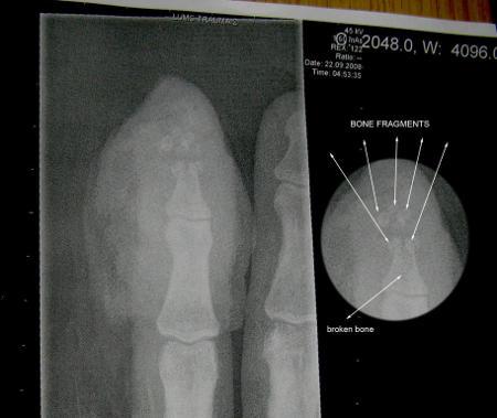 Röntgenkuva sormesta onnettomuuden jälkeen.  Murtunut sormenpää näkyvissä