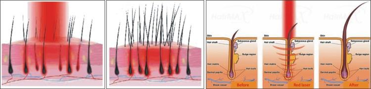 Hiuspohjan stimulointia - Low-Level Laser (Light) Therapy (LLLT) for Treatment of Hair Loss